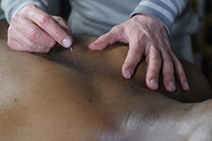 Medical Acupunture at Natural Moves studio